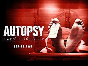 Autopsy: